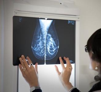 Charla – Taller «La salud de las mujeres a partir de los 40»
